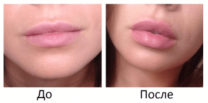 Увеличение губ с помощью инъекций
