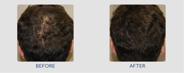Инъекция мезотерапии для волос