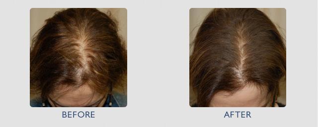До и после мезотерапии для женщин
